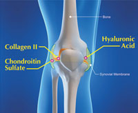Collagen Type II for Arthritis Pain Relief